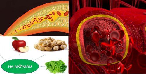 Cách phòng ngừa bệnh mỡ máu ra sao?