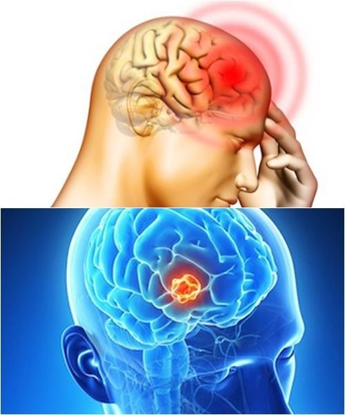 U não là căn bệnh nguy hiểm đe dọa tính mạng con người