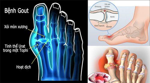 Nguyên nhân bệnh gout với dấu hiệu và cách điều trị bệnh gout hiệu quả