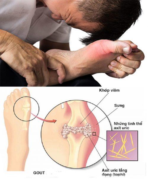 Nguyên nhân bệnh gout cấp tính