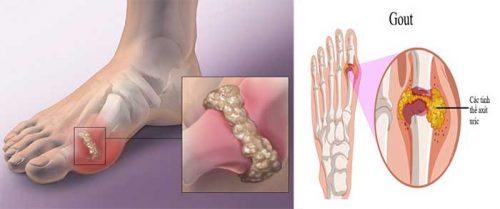 Nguyên nhân bệnh gout hiện nay