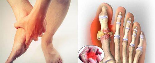 Nguyên nhân bệnh gout là gì?