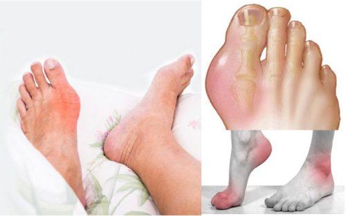 Nguyên nhân bệnh gout mạn tính
