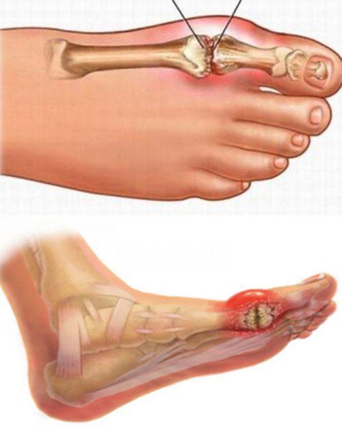 Nguyên nhân bệnh gout ở người trẻ tuổi