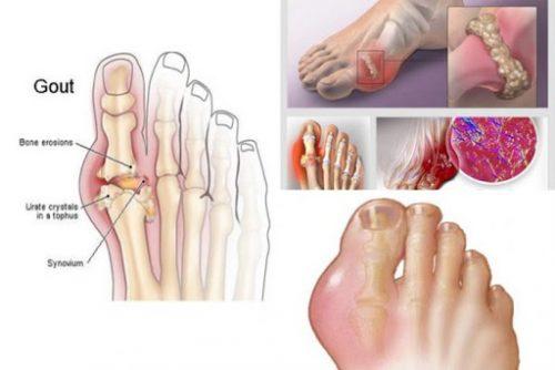Nguyên nhân bệnh gout theo Đông y