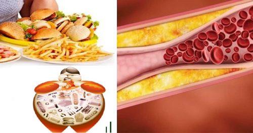 Nguyên nhân của bệnh mỡ máu cao là gì?