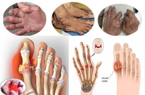 Nguyên nhân gây ra biến chứng bệnh gout