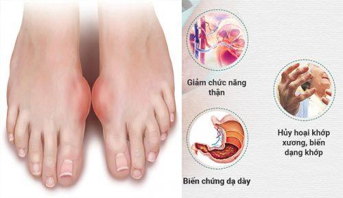 Nguyên nhân khiến bệnh gout khó điều trị