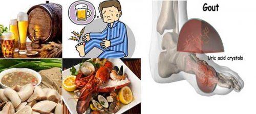 Những nguyên nhân chính gây bệnh gout