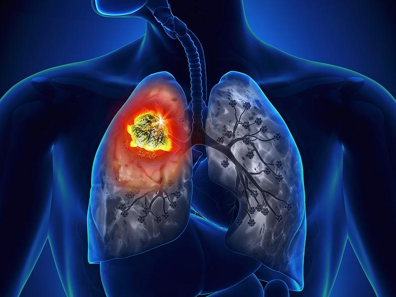 Ung thư phổi ngày càng gia tăng về số lượng và đang có xu hướng trẻ hóa