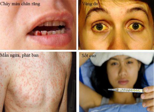 Biểu hiện dễ thấy của bệnh viêm gan b.