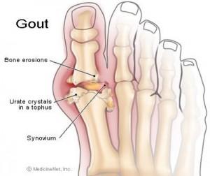 Bệnh gout thường gây sưng ở các khớp