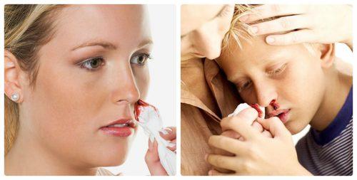 Ung thư máu gây ra nhiều biến chứng nguy hiểm cho người bệnh.