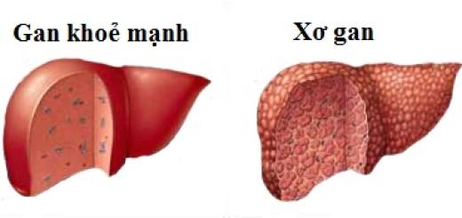 Bệnh gan có nguy hiểm không?