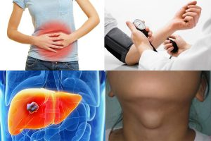 Cách dùng cao xạ đen đúng là sử dụng cho bệnh nhân ung thư, người có u bướu lành tính, người mắc bệnh về tiêu hóa...