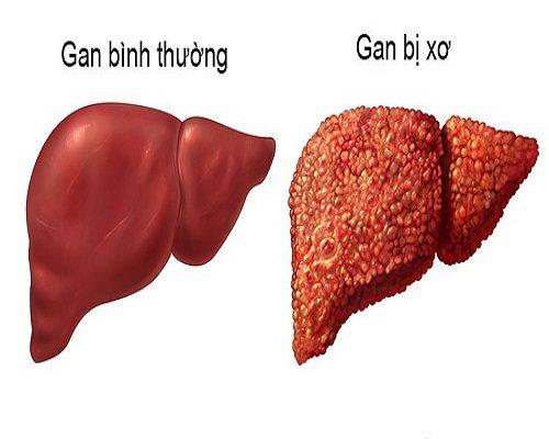 Cao xạ đen hỗ trợ điều trị các bệnh về gan hiệu quả