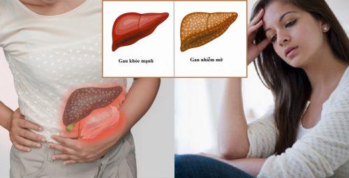 Bệnh gan nhiễm mỡ có nguy hiểm không và gan nhiễm mỡ có mấy cấp độ?