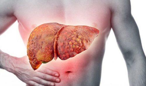 Bệnh xơ gan có điều trị được không cách chẩn đoán điều trị xơ gan