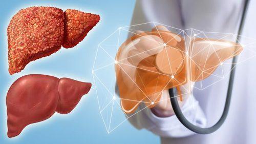 Cách chẩn đoán và điều trị bệnh xơ gan giai đoạn mất bù hiệu quả