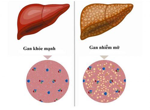 Cách chẩn đoán và điều trị gan nhiễm mỡ bằng y học hiện đại là gì?