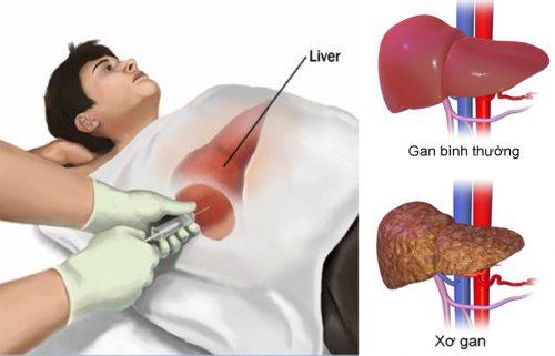 Cách chẩn đoán và điều trị xơ gan và biến chứng của bệnh xơ gan