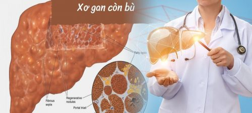 Cách chẩn đoán và phương pháp điều trị xơ gan giai đoạn còn bù
