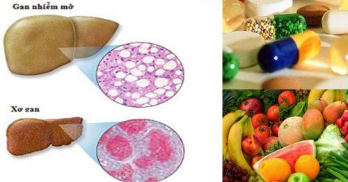 Cách điều trị gan nhiễm mỡ độ 2 nhờ chế độ dinh dưỡng và luyện tập
