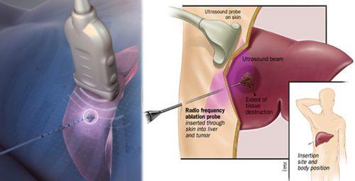 Phương pháp điều trị ung thư gan bằng đốt sóng cao tần như thế nào?