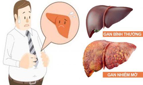 Gan nhiễm mỡ cấp độ 3 có nguy hiểm không và biến chứng bệnh là gì?