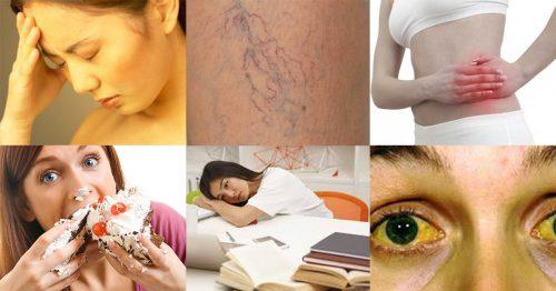 Gan nhiễm mỡ có triệu chứng gì với những những dấu hiệu ra sao?