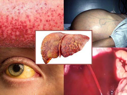 Xơ gan giai đoạn 4 là gì với các triệu chứng xơ gan giai đoạn cuối