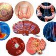 Các loại bệnh ung thư với dấu hiệu của các loại bệnh ung thư. Viện Y