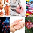 Viêm khớp với nguyên nhân triệu chứng và cách điều trị viêm khớp