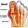 Phương pháp mới trong điều trị bệnh gout