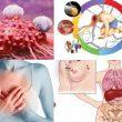 Nguy cơ gây ung thư với các đối tượng và cách phòng các bệnh ung thư