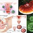 Ung thư cổ tử cung với nguyên nhân và triệu chứng ung thư cổ tử cung