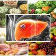 Ung thư gan ăn gì với thực phẩm và chăm sóc người bệnh ung thư gan