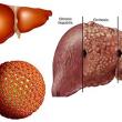 Thuốc điều trị viêm gan siêu vi B